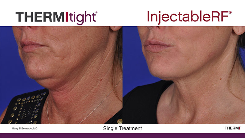 Thermi Facelift Jowls